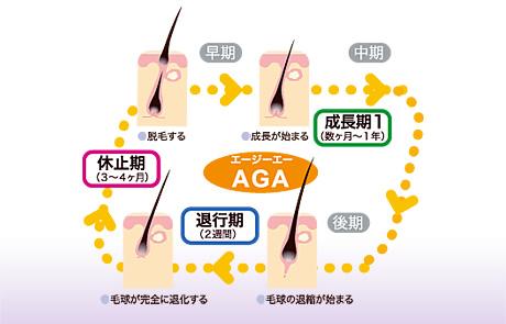 AGAの原因